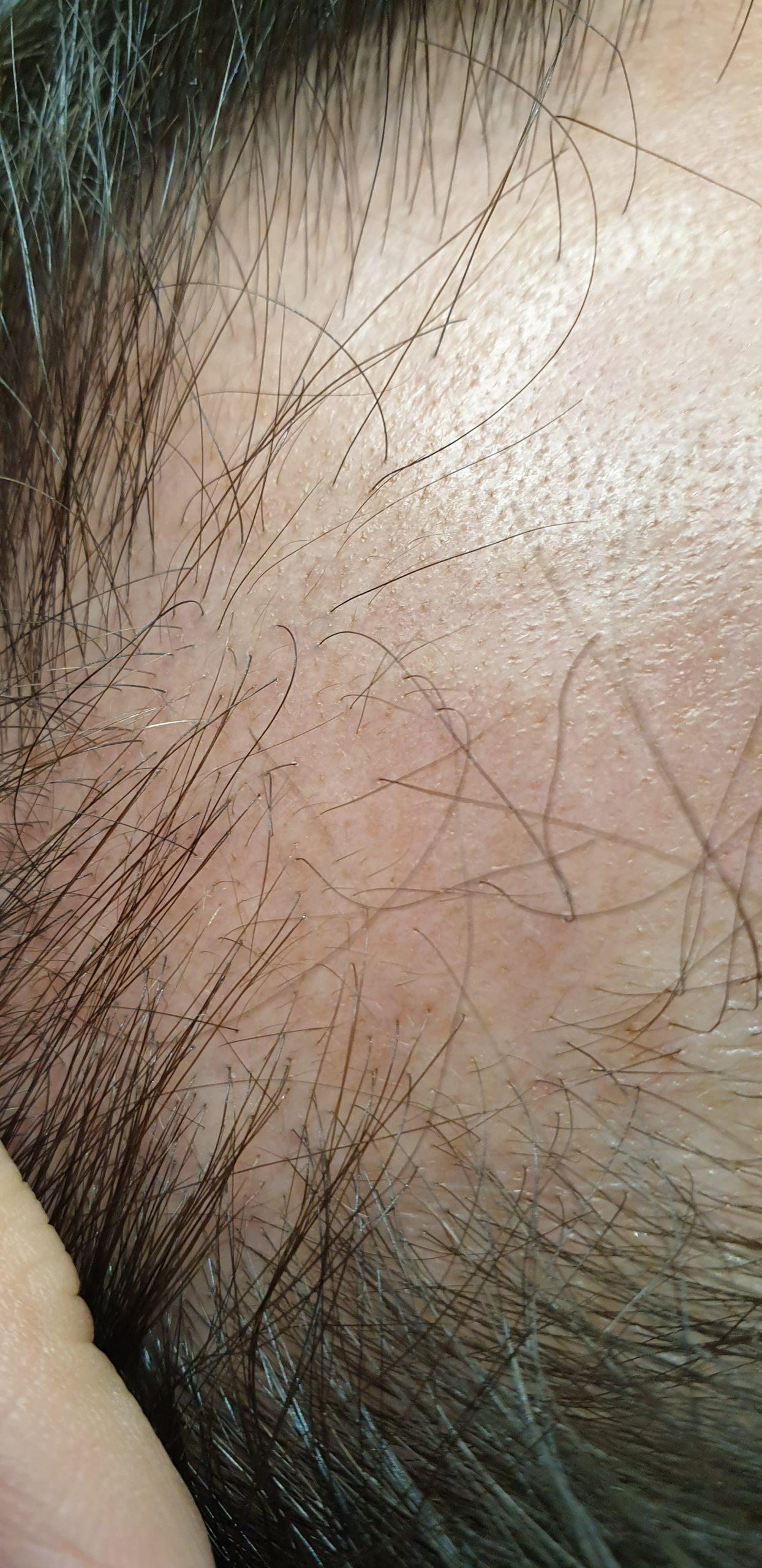 Perte de cheveux: Traitement capillaire de la calvitie et alopécie le Beausset